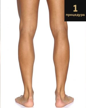 Laser hair removal full legs men